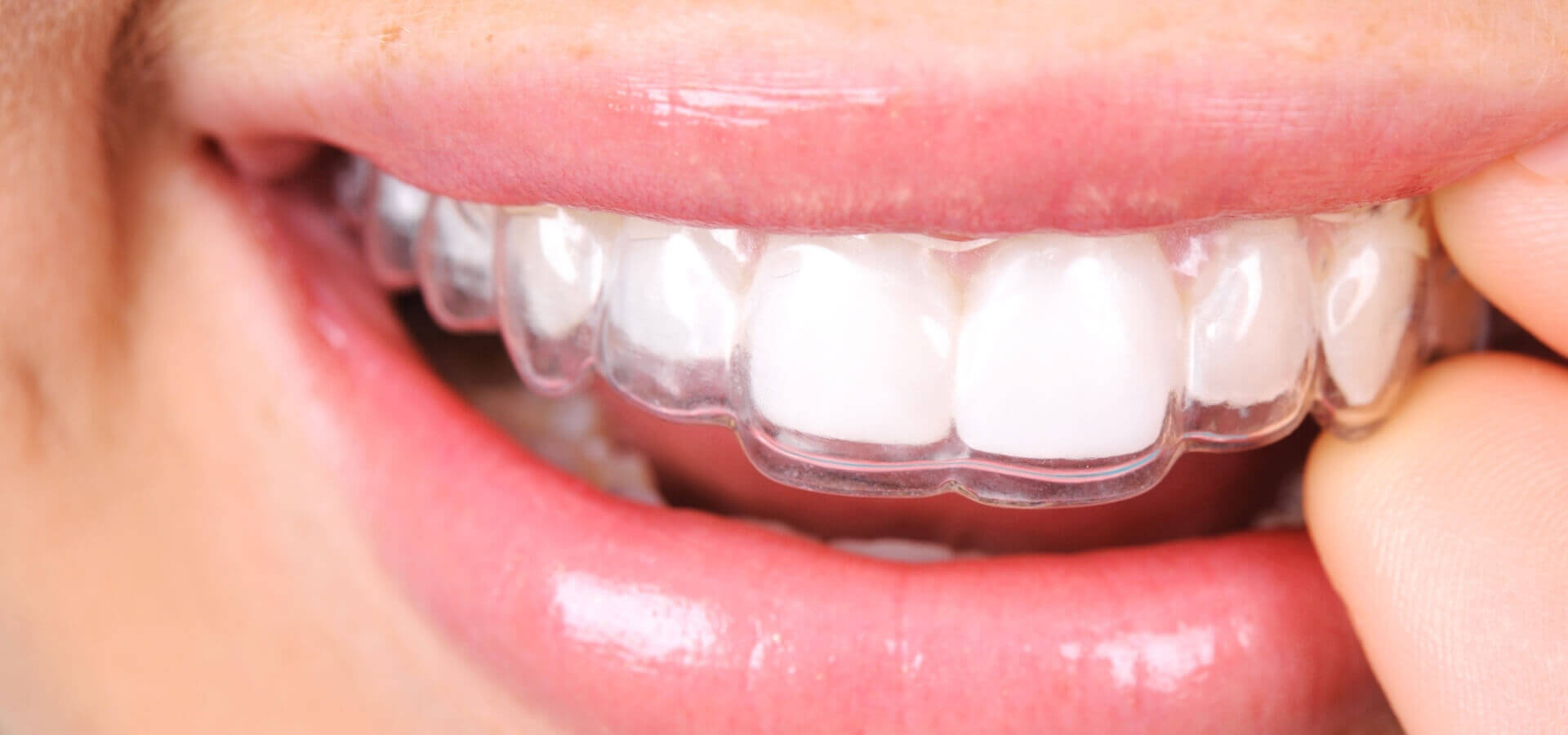 Retainers at Wimpole Street Dental Clinic London