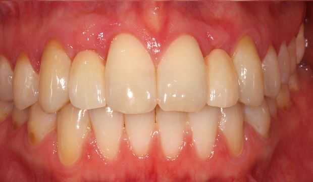 Replacing missing front teeth with Maryland bridges result