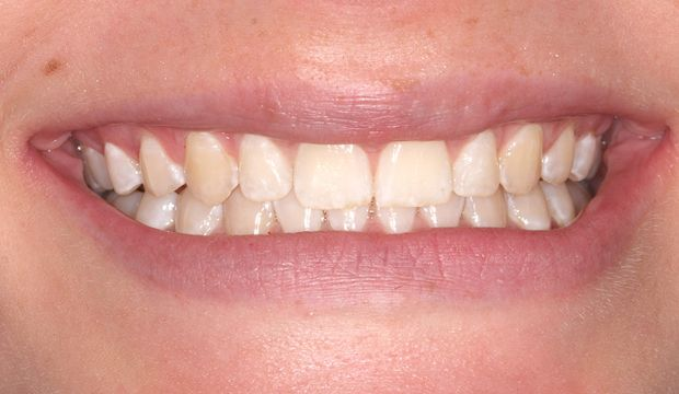 Invisalign/Orthodontics treatment of front teeth with gaps in between them result - Dental Clinic London