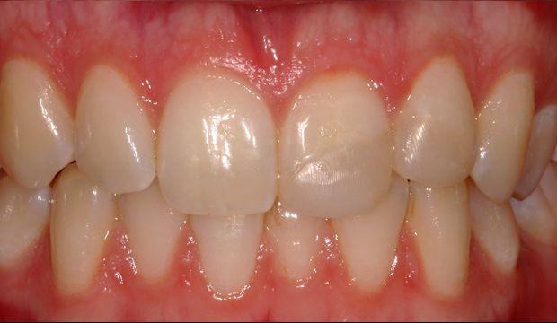 Aesthetic treatment with veneers at Dental Clinic London
