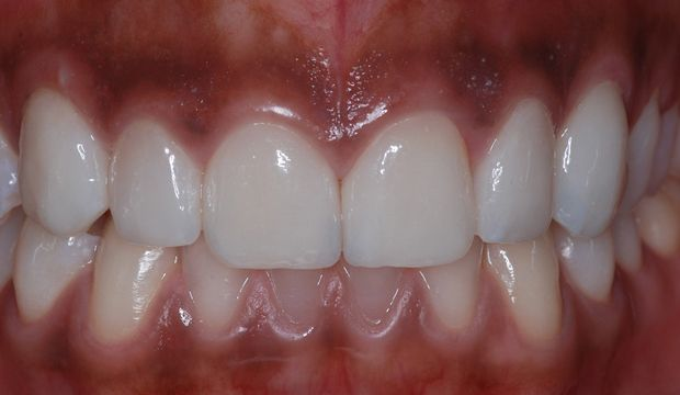 Aesthetic treatment with veneers after - Dental Clinic London