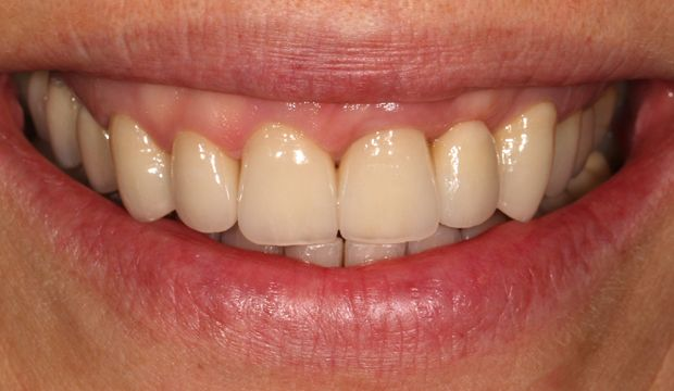 Restoration of the entire dentition result at Dental Clinic London