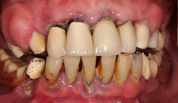 Full mouth reconstruction before treatment - german dentist London