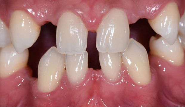 Full mouth reconstruction needed - Dental Clinic London
