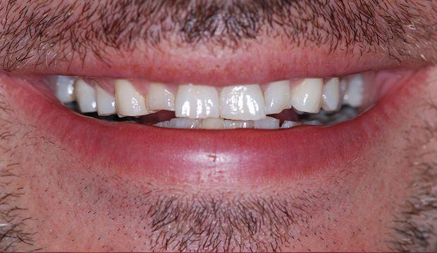 Restoration of the entire dentition needed - german dentist Wimpolestreet