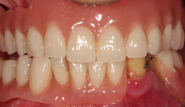 All-on-4 - Implants at Dental Clinic London
