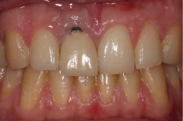 dental crown before after part 1