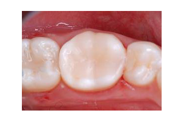 Treatment of root canal at London private dentists